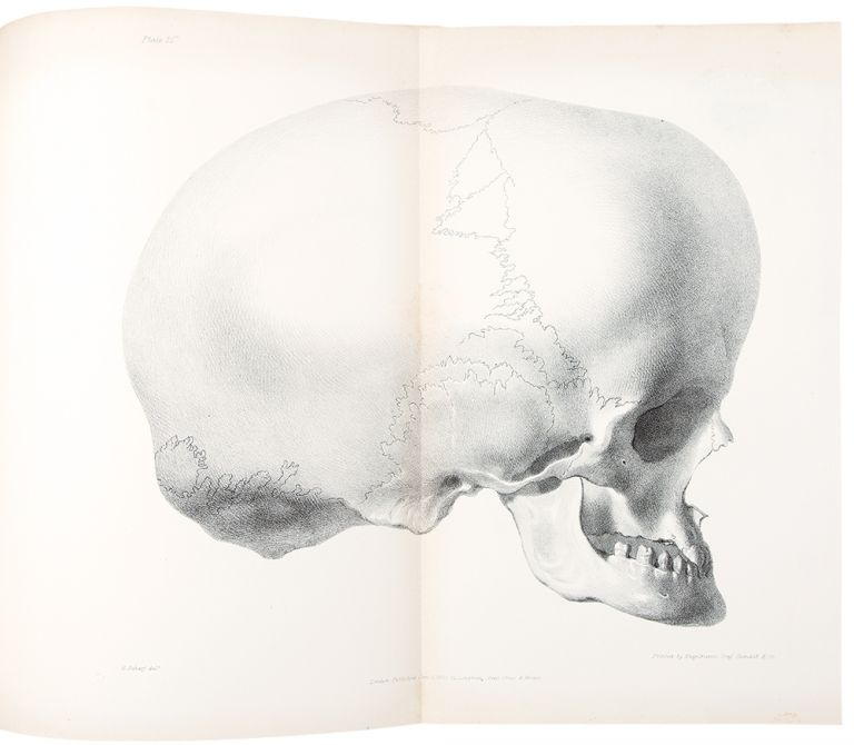 Reports of Medical Cases, Selected with a View of Illustrating the Symptoms and Cure of Diseases. Richard BRIGHT.