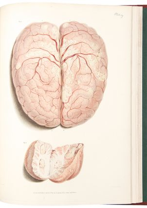 Reports of Medical Cases, Selected with a View of Illustrating the Symptoms and Cure of Diseases
